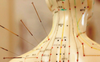How is the acupuncture popularity?