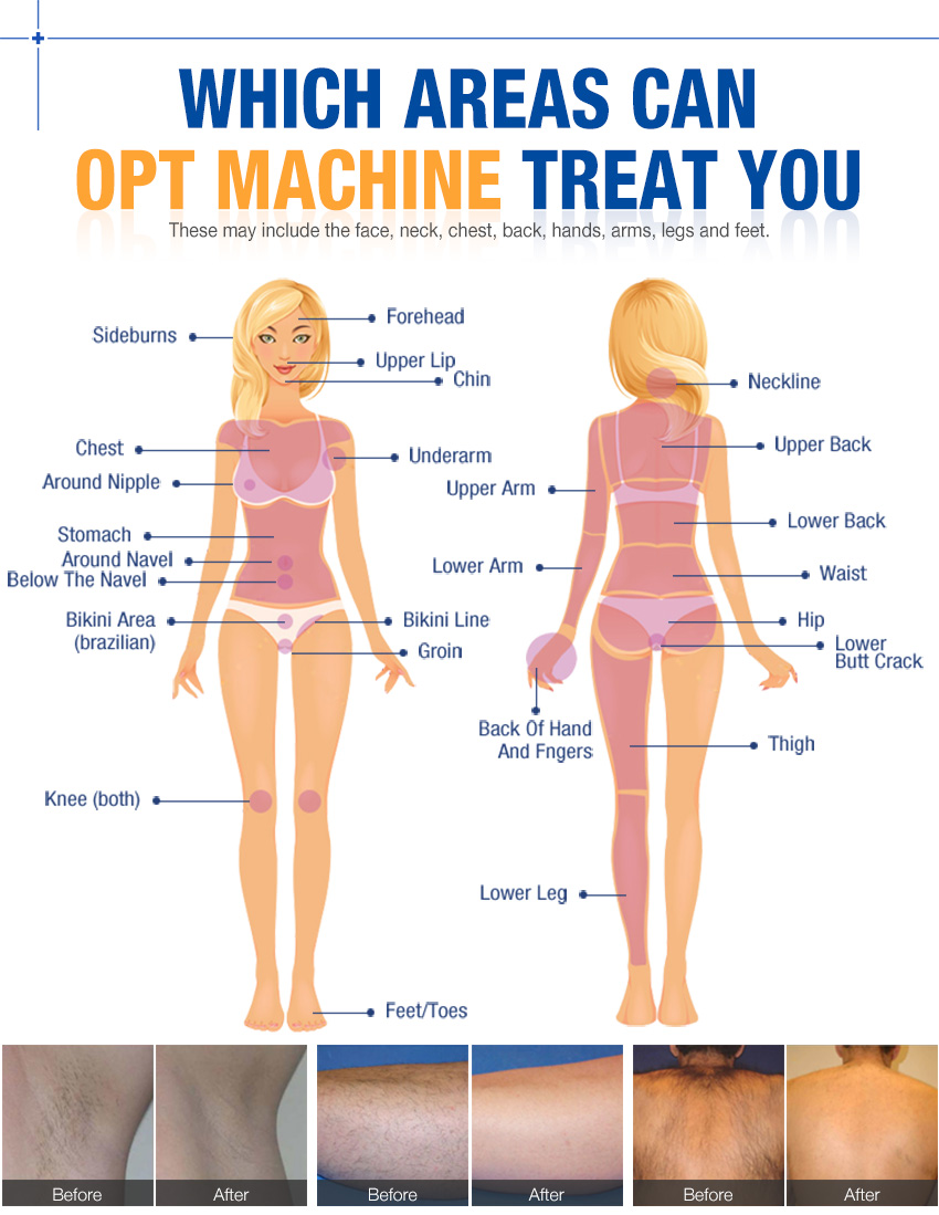 opt hair removal machine treatment area