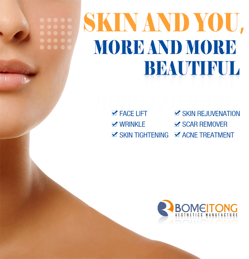 fractional rf for acne scars