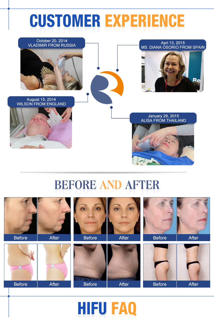 non surgical face lift machine customer experience