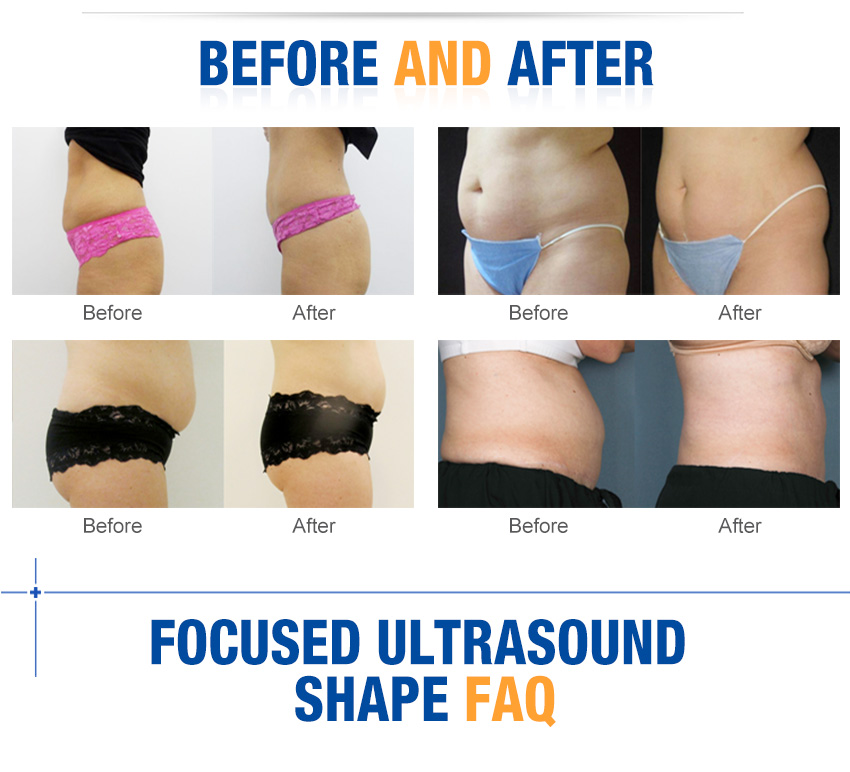 ultrasound fat removal good results