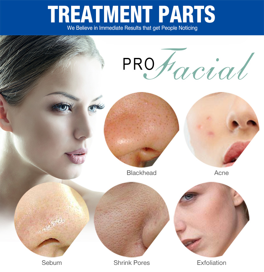 aqua peel machine treatment parts