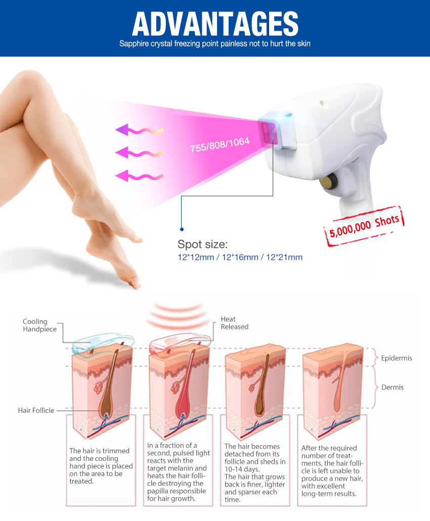 diode laser hair removal machine advantages