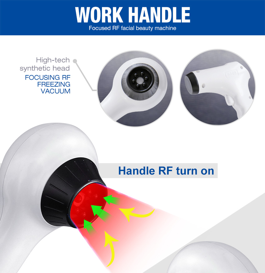 Thermal rf handle